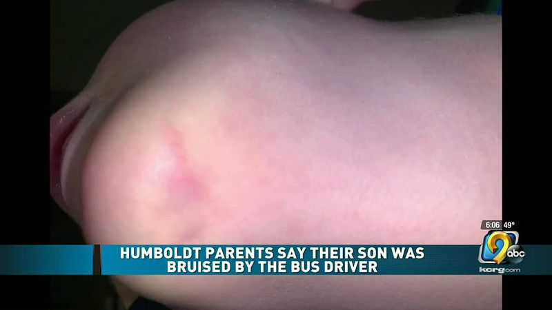 Humboldt County parents say their son was bruised by a school bus driver
