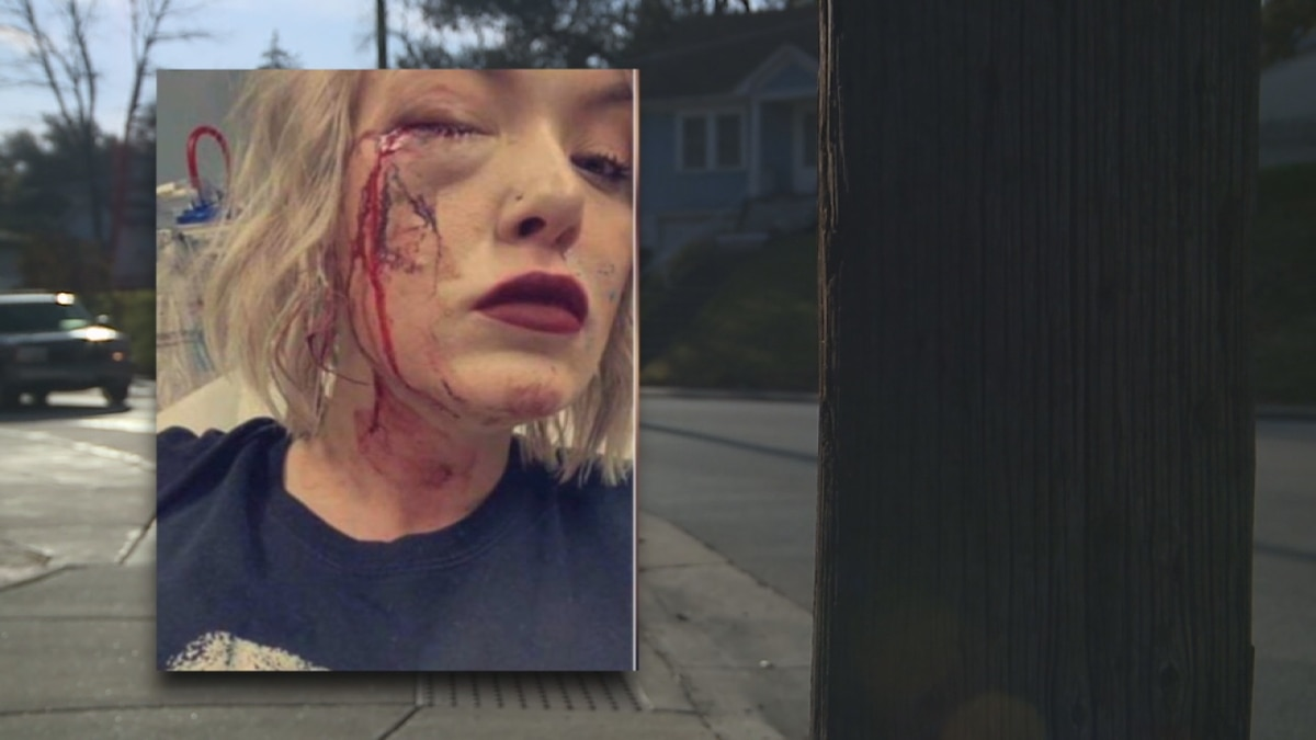 Shelby Reichard was injured when a paintball hit her in the face. Two teens have been arrested...