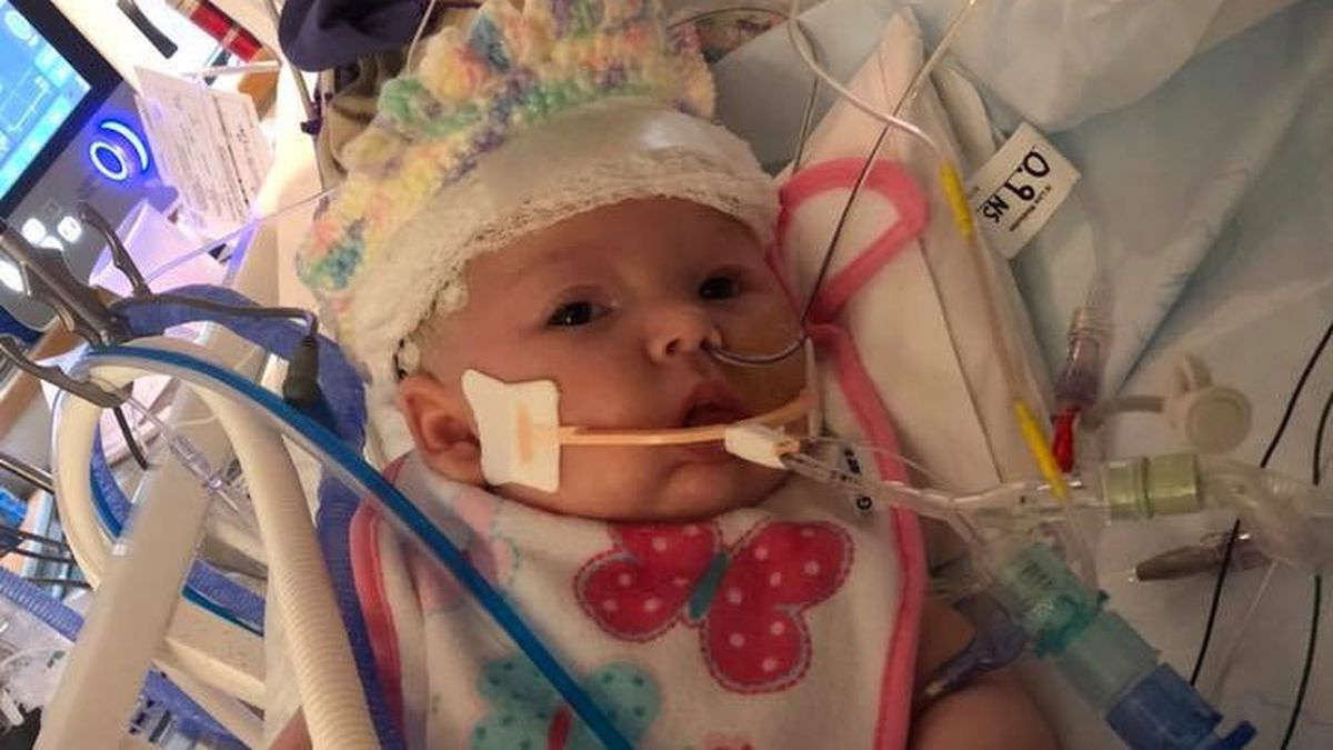Picture of Baby McKenna from the Healing for McKenna Facebook page.